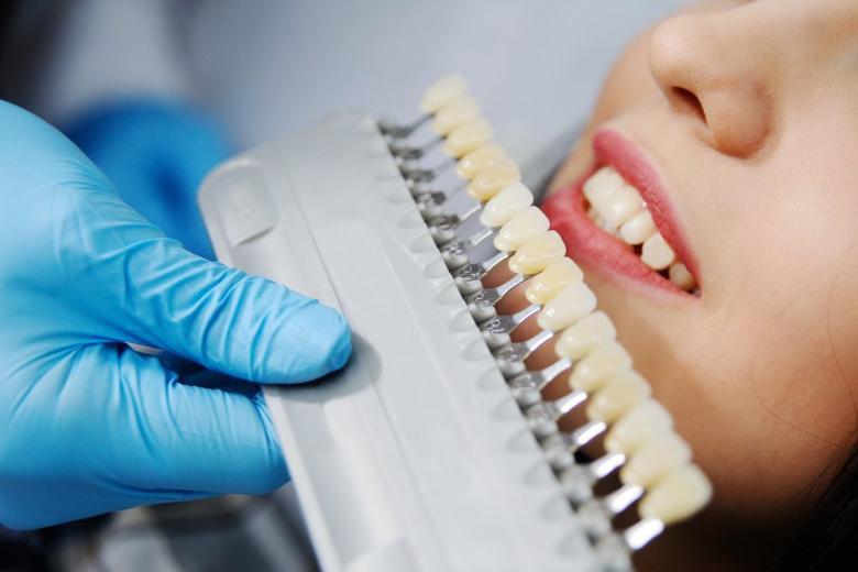 Как выбрать прочную и недорогую зубную пломбу фото 3