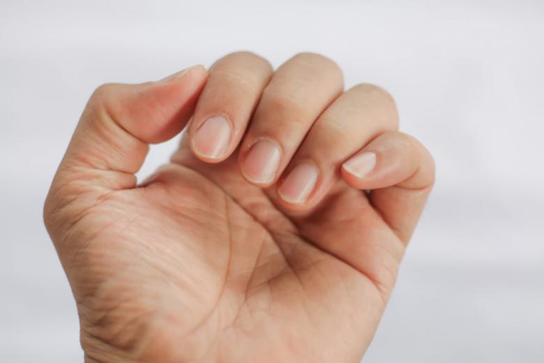 Как по состоянию рук узнать о болезнях человека? фото 1