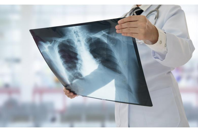 Врач смотрит рентген-снимок