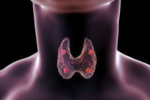10 симптомов, указывающих на проблемы со «щитовидкой» фото 2