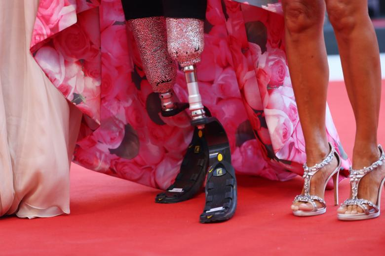 Джуди Верчаче - протез ног