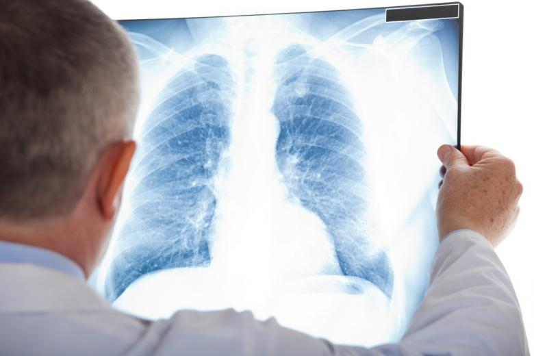 Врач смотрит на рентген лёгких фото