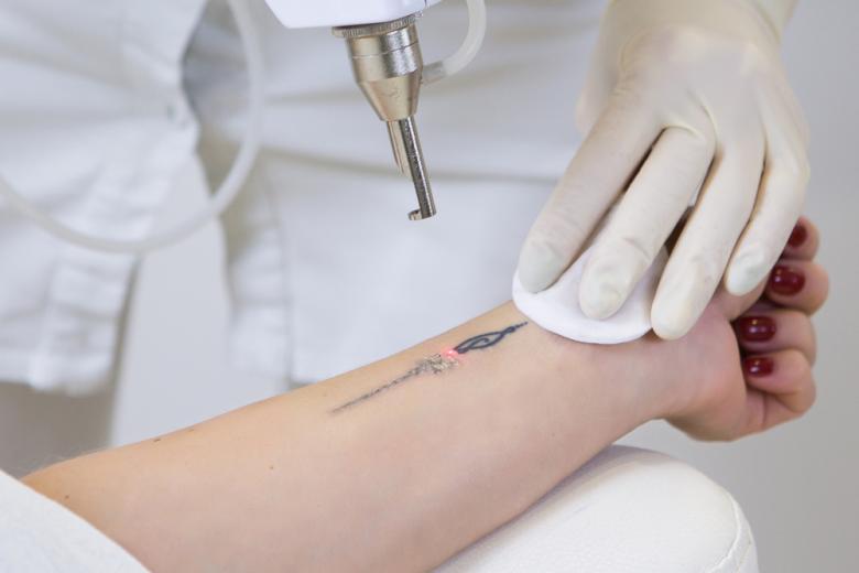 Удаление татуировки лазером смогут делать только врачи фото