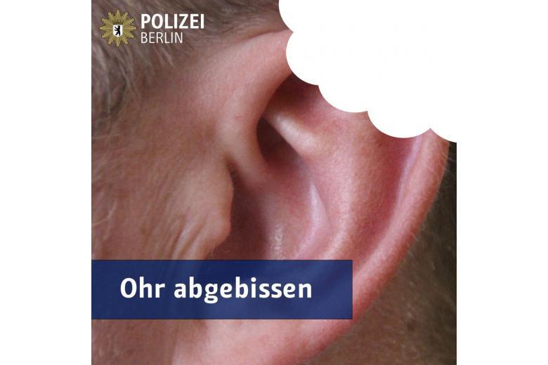 В берлинской электричке иностранец отгрыз пассажиру ухо фото 1