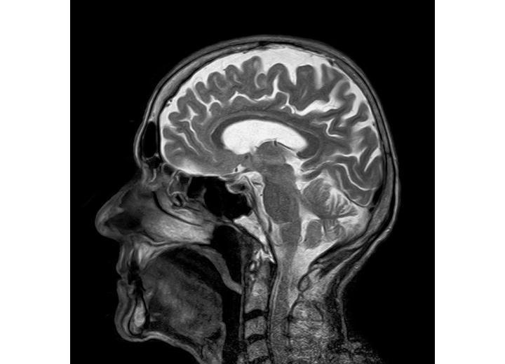 мысли о пересадке головы фото